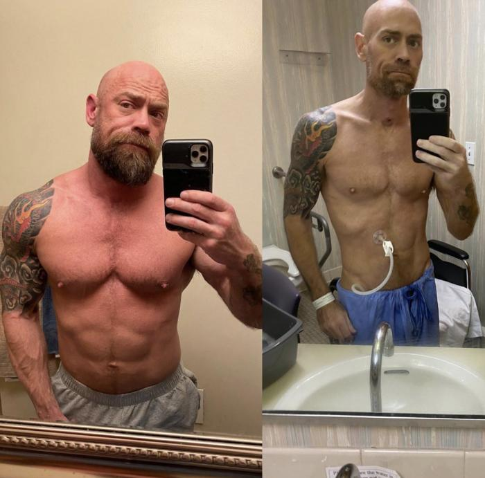 Mike Schultz shares two photos of himself before and after fighting COVID-19.