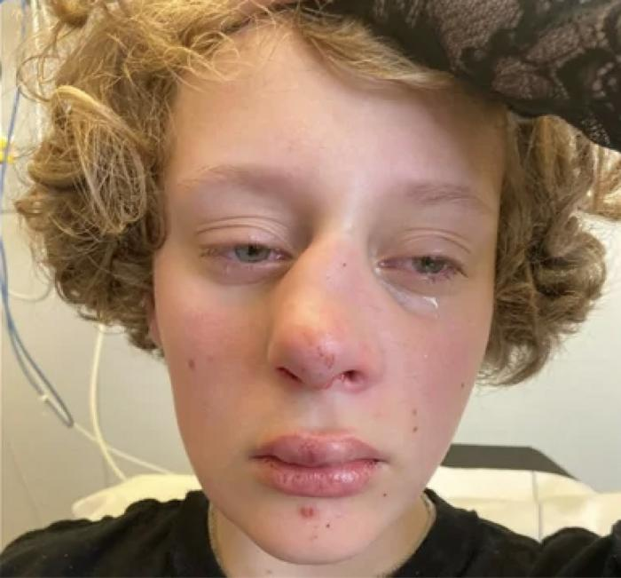 Police: Attack on 14-Year-Old Dutch Girl May be LGBTQ-Linked